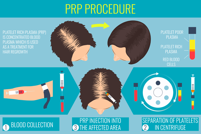Platelet rich plasma injection. PRP therapy process. Male hair loss treatment infographics. Injection. Meso therapy. Hair growth stimulation. Vector illustration.