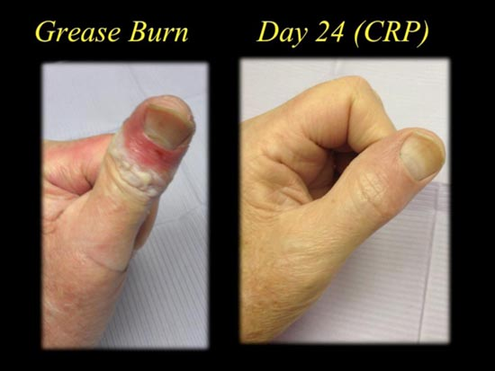 grease burn case study day 24
